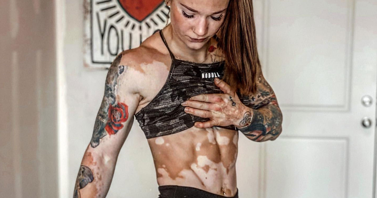 Girl With Vitiligo Learns To Accept Her Body Through Bodybuilding