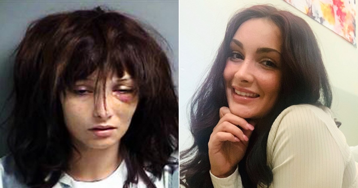 Incredible Transformation Of Former Addict 3 Years After She Suffered From 19 Overdoses