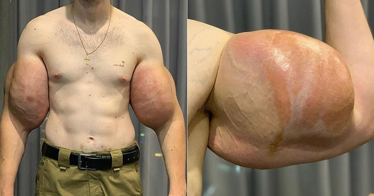 Real-Life Russian Popeye Undergoes Surgery To Remove Hardened Jelly From Fake Muscles