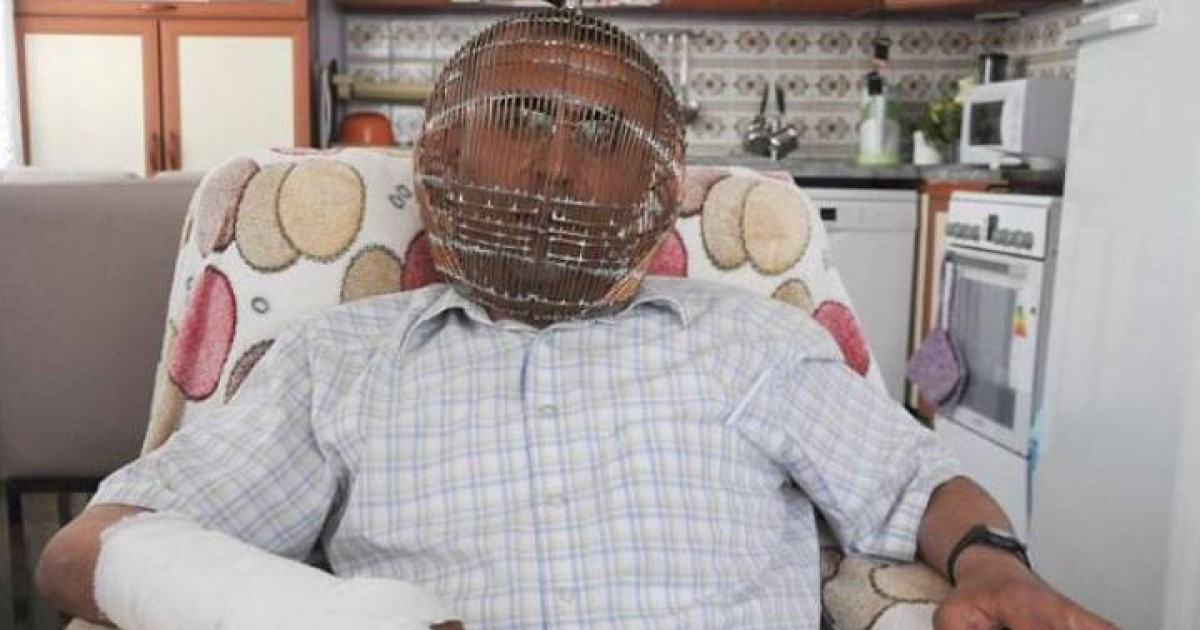 In A Desperate Attempt, Man Locks His Head In Cage To Quit Smoking
