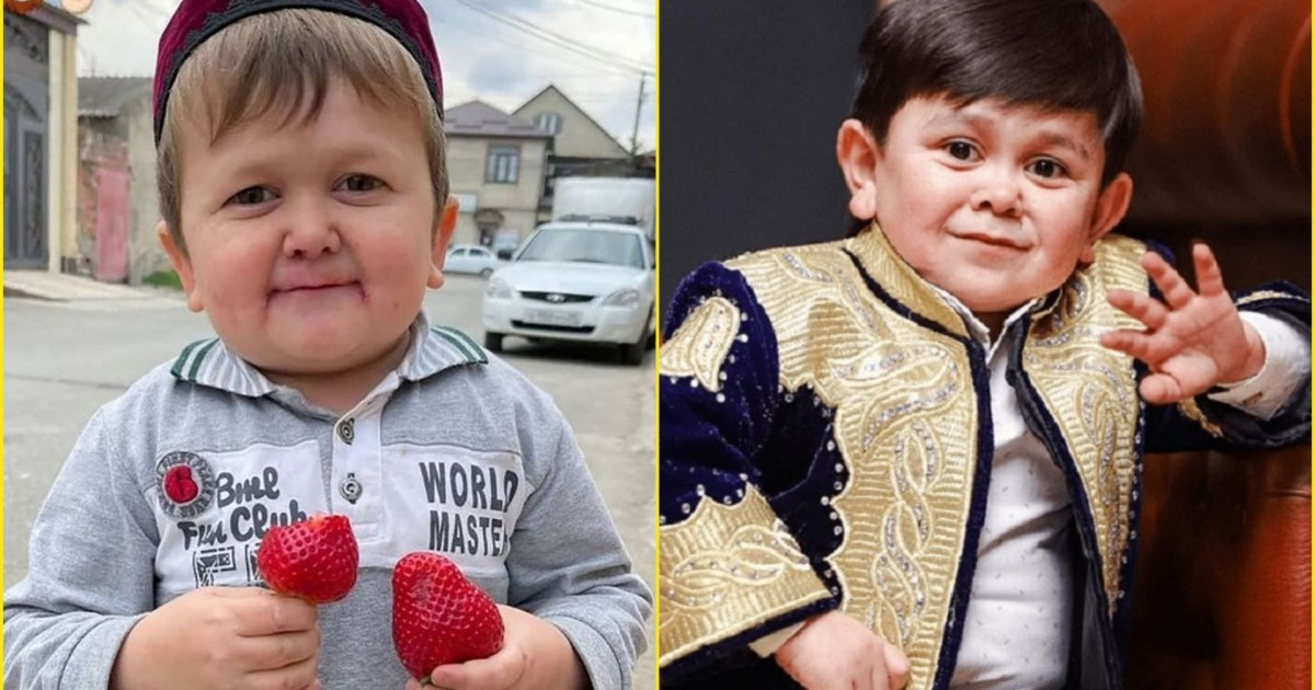 New Internet Sensation Hasbulla And His Enemy Abdu Rozik's Real Age Revealed And Explained By Doctor