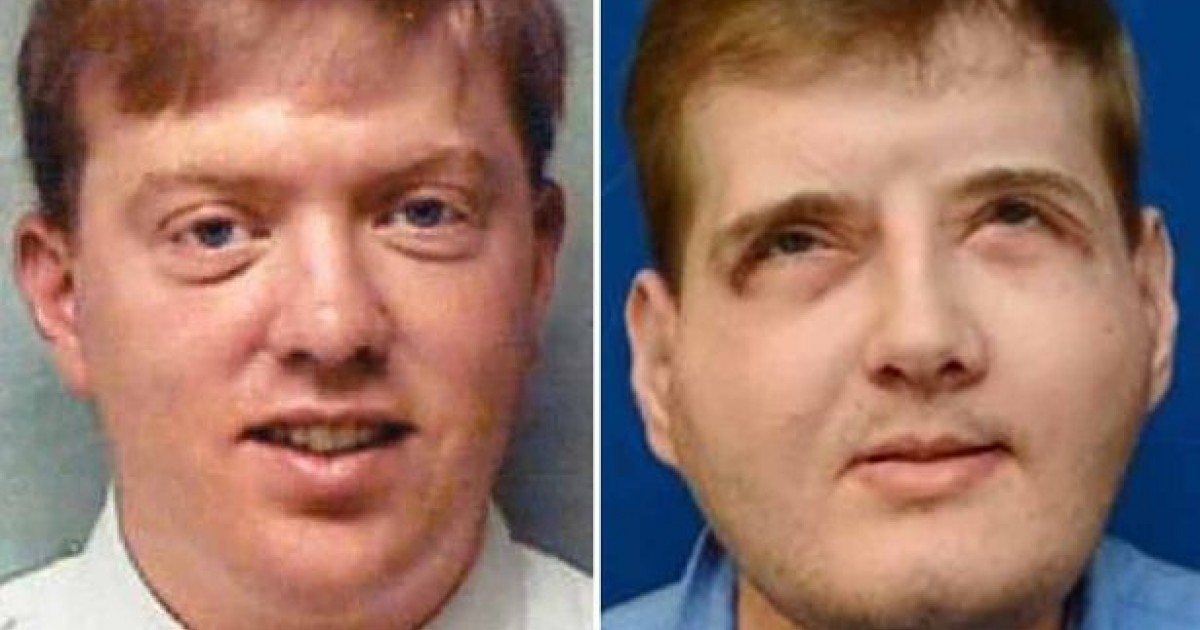 Man Opens Up On His Life After Having The World's Most Extensive Face Transplant Operation
