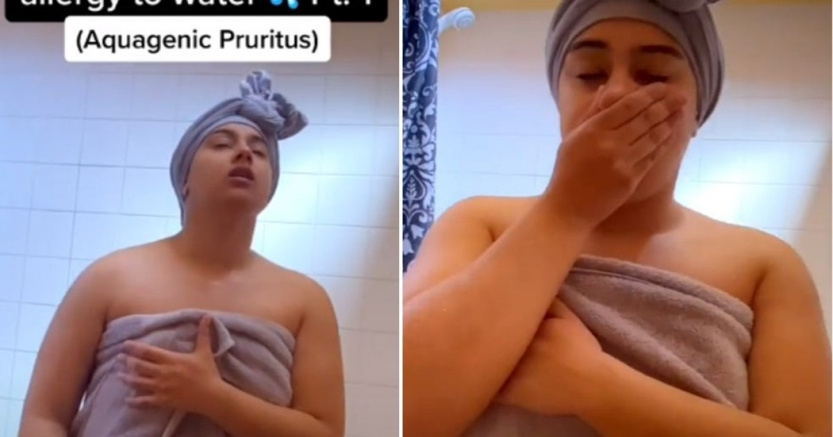 Woman Allergic To Water Shares How She Washes Herself