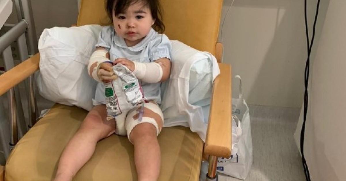 Scalding KFC Gravy Left Toddler Screaming In Agony And Suffering Horrific Burns